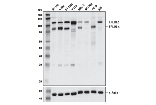 Western blot analysis of extracts from various cell lines using Eplin (D1A7A) Rabbit mAb (upper) or β-Actin (D6A8) Rabbit mAb #8457 (lower).
