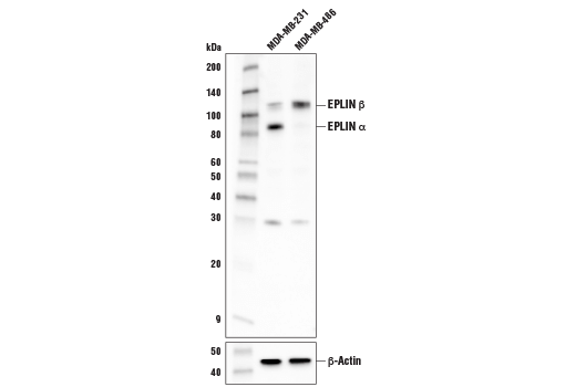 Western blot analysis of extracts from MDA-MB-231 and MDA-MB-486 cells using EPLIN (D1A7A) Rabbit mAb (upper) or β-Actin (D6A8) Rabbit mAb #8457 (lower).