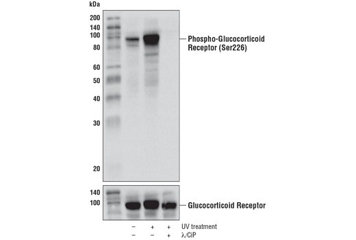 Western blot analysis of extracts from HeLa cells, untreated (-), UV-treated (+), or UV-treated and subsequently treated with calf intestinal phosphatase (CIP) plus λ-phosphatase (+), using Phospho-Glucocorticoid Receptor (Ser226) (D9D3V) Rabbit mAb (upper) or Glucocorticoid Receptor (D6H2L) XP<sup>®</sup> Rabbit mAb #12041 (lower).