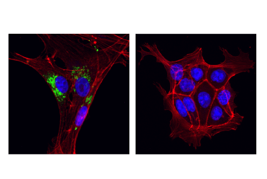 Immunofluorescence Image 1: MMP-2 (D4M2N) Rabbit mAb