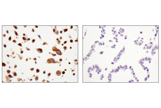Immunohistochemical analysis of paraffin-embedded U-87 MG cell pellet (left, positive) or HCT-15 cell pellet (right, negative) using MMP-2 (D4M2N) Rabbit mAb.