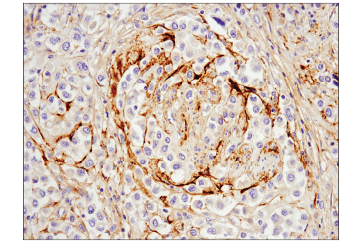 Immunohistochemical analysis of paraffin-embedded human bladder adenocarcinoma using MMP-2 (D4M2N) Rabbit mAb.