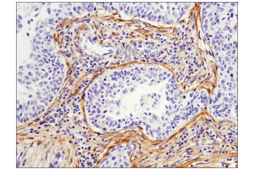 Immunohistochemical analysis of paraffin-embedded human cervical carcinoma using MMP-2 (D4M2N) Rabbit mAb.