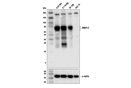 Western blot analysis of extracts from various cell lines using MMP-2 (D4M2N) Rabbit mAb (upper) and β-Actin (D6A8) Rabbit mAb #8457 (lower).