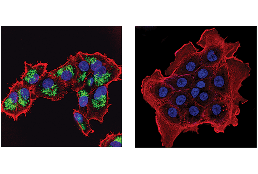Immunofluorescence Image 1: Malic Enzyme 2 (E1N3E) XP® Rabbit mAb