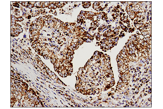 Immunohistochemical analysis of paraffin-embedded human infiltrating papillary carcinoma of the breast using Malic Enzyme 2 (E1N3E) XP<sup>® </sup>Rabbit mAb.