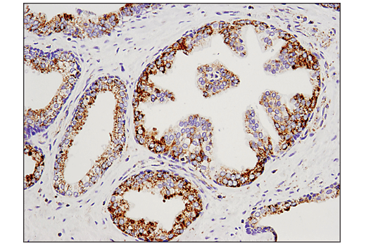 Immunohistochemical analysis of paraffin-embedded human prostate carcinoma using Malic Enzyme 2 (E1N3E) XP<sup>®</sup> Rabbit mAb.