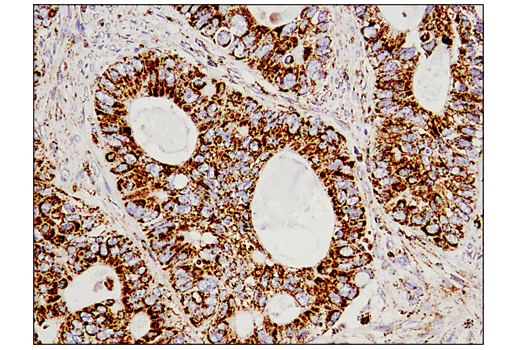 Immunohistochemical analysis of paraffin-embedded human colon carcinoma using Malic Enzyme 2 (E1N3E) XP<sup>®</sup> Rabbit mAb.