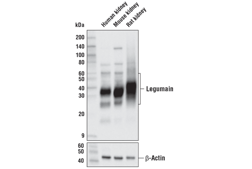 Western Blotting - Legumain (D6S4H) Rabbit mAb