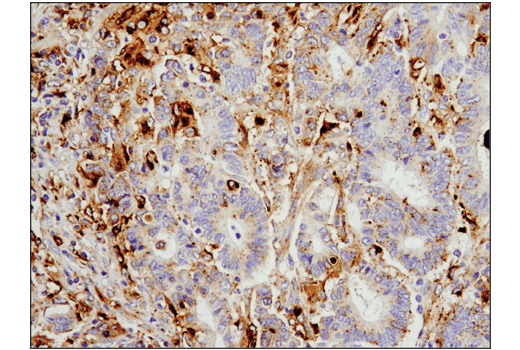 IHC-P (paraffin) - Legumain (D6S4H) Rabbit mAb