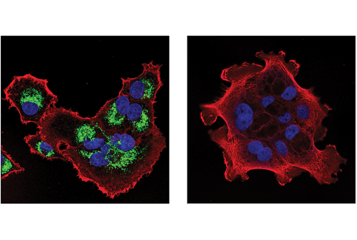 Confocal immunofluorescent analysis of PANC-1 (positive, left) or BxPC3 (negative, right) cells using Malic Enzyme 2 (E1N3F) XP<sup>®</sup> Rabbit mAb (green) and β-Actin (8H10D10) Mouse mAb #3700 (red). Blue pseudocolor = DRAQ5® #4084 (fluorescent DNA dye).