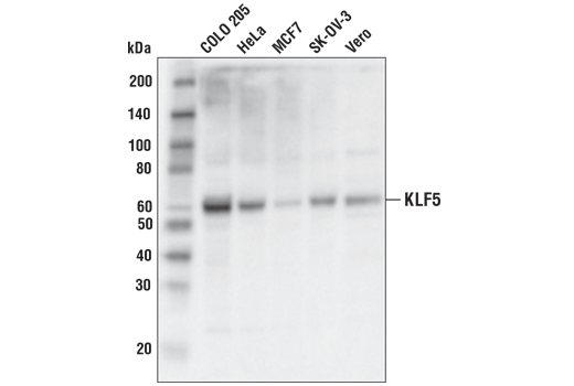 Western blot analysis of extracts from various cell lines using KLF5 (D7S3F) Rabbit mAb.