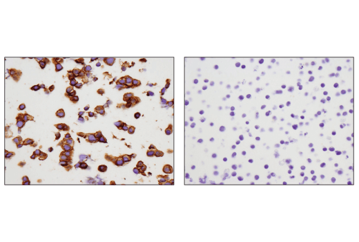 Immunohistochemical analysis of paraffin-embedded NCI-H526 cell pellet (left, positive) or Jurkat cell pellet (right, negative) using c-Kit (D3W6Y) XP<sup>®</sup> Rabbit mAb.