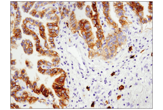 Immunohistochemical analysis of paraffin-embedded human lung carcinoma using c-Kit (D3W6Y) XP<sup>®</sup> Rabbit mAb.