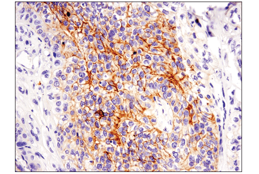 Immunohistochemical analysis of paraffin-embedded human squamous cell lung carcinoma using c-Kit (D3W6Y) XP® Rabbit mAb performed on the Leica® Bond™ Rx.
