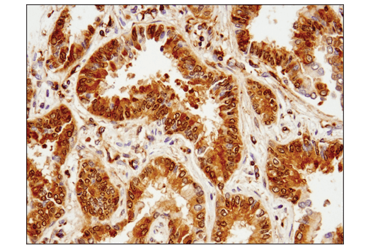 Immunohistochemical analysis of paraffin-embedded human lung carcinoma using Phospho-Glycogen Synthase (Ser641) (D4H1B) XP<sup>®</sup> Rabbit mAb.