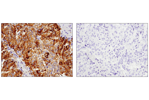 Immunohistochemical analysis of paraffin-embedded human endometrioid adenocarcinoma, untreated (left) or λ phosphatase treated (right), using Phospho-Glycogen Synthase (Ser641) (D4H1B) XP<sup>®</sup> Rabbit mAb.