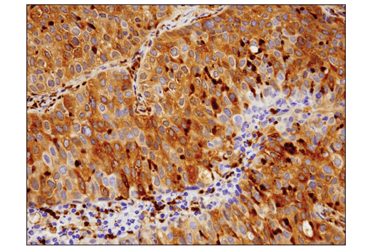 Immunohistochemical analysis of paraffin-embedded human squamous cell carcinoma of the lung using Phospho-Glycogen Synthase (Ser641) (D4H1B) XP<sup>®</sup> Rabbit mAb.