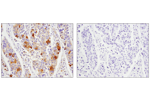 Immunohistochemical analysis of paraffin-embedded human ductal carcinoma of the breast using Phospho-Glycogen Synthase (Ser641) (D4H1B) XP<sup>®</sup> Rabbit mAb in the presence of control peptide (left) or antigen-specific peptide (right).