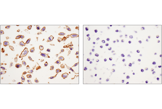 Immunohistochemical analysis of paraffin-embedded HeLa cell pellet (left, positive) or HL-60 cell pellet (right, negative) using Catenin δ-1 (D7S2M) XP<sup>®</sup> Rabbit mAb.