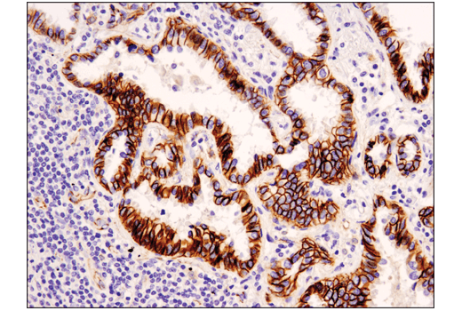 Immunohistochemistry Image 1: Catenin δ-1 (D7S2M) XP® Rabbit mAb