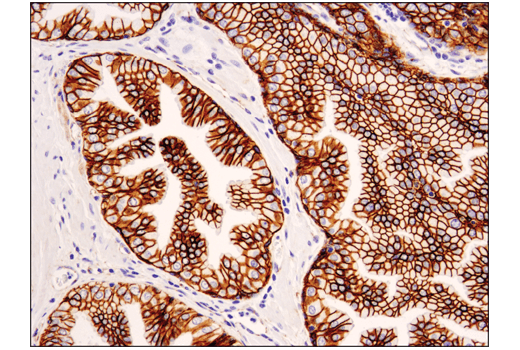 Immunohistochemistry Image 2: Catenin δ-1 (D7S2M) XP® Rabbit mAb