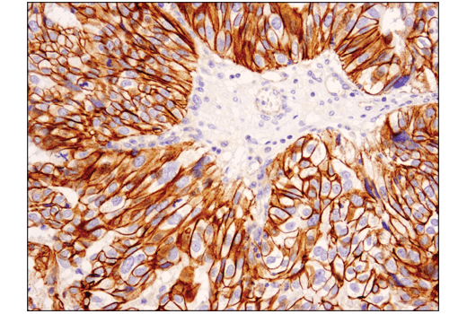 Image 1: Catenin δ-1 (D7S2M) XP® Rabbit mAb