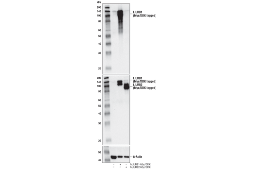 Western blot analysis of extracts from 293T cells, mock transfected (-) or transfected with constructs expressing Myc/DDK-tagged full-length human LILRB1 protein (hLILRB1-Myc/DDK; +) or Myc/DDK-tagged full-length human LILRB2 protein (hLILRB2-Myc/DDK; +), using LILRB1/CD85j (D4L8L) Rabbit mAb (upper), DYKDDDDK Tag Antibody #2368 (middle), and β-Actin (D6A8) Rabbit mAb #8457 (lower).