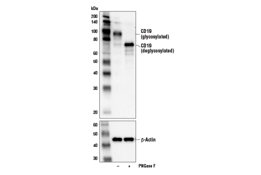 Western blot analysis of extracts from Daudi cells, untreated (-) or treated with PNGase F (+), using CD19 (D4V4B) XP<sup>®</sup> Rabbit mAb (upper) and β-Actin (D6A8) Rabbit mAb #8457 (lower).