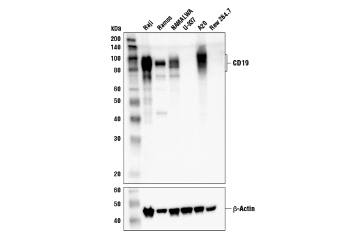 Image 36: B Cell Signaling Antibody Sampler Kit II