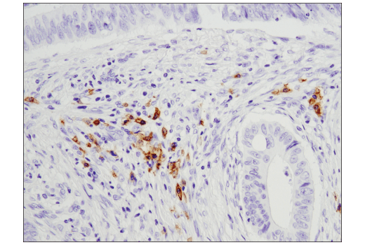 Immunohistochemical analysis of paraffin-embedded human colon carcinoma using CD19 (D4V4B) XP<sup>®</sup> Rabbit mAb.