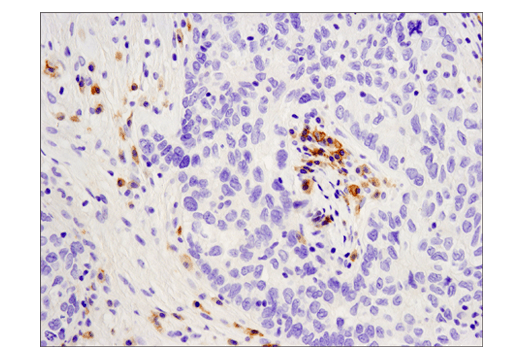 Immunohistochemical analysis of paraffin-embedded human endometrioid carcinoma using CD19 (D4V4B) XP® Rabbit mAb performed on the Leica® Bond™ Rx.