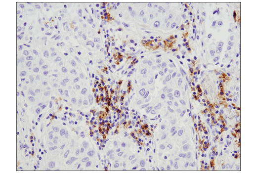 Immunohistochemical analysis of paraffin-embedded human lung carcinoma using CD19 (D4V4B) XP<sup>®</sup> Rabbit mAb.