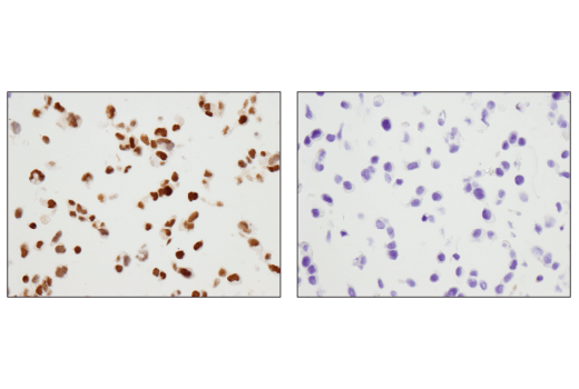 Immunohistochemical analysis of paraffin-embedded 293 cell pellet (left, positive) or MCF7 cell pellet (right, negative) using Pax6 (D3A9V) XP<sup>®</sup> Rabbit mAb.