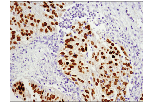 Immunohistochemical analysis of paraffin-embedded human endometrioid adenocarcinoma using Pax6 (D3A9V) XP<sup>®</sup> Rabbit mAb.