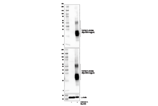 Polyclonal Antibody - TNFRSF17/BCMA Antibody - Immunoprecipitation, Western Blotting, UniProt ID Q02223, Entrez ID 608 #47988 - Immunology and Inflammation