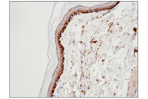 Immunohistochemical analysis of paraffin-embedded normal human skin using 4F2hc/CD98 (D5U4G) XP<sup>®</sup> Rabbit mAb.