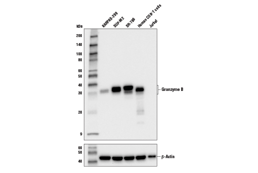 Western blot analysis of extracts from various cell lines using Granzyme B (D2H2F) Rabbit mAb (upper) and β-actin (D6A8) Rabbit mAb #8457 (lower).