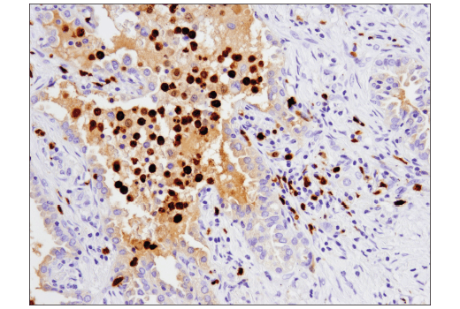 Immunohistochemical analysis of paraffin-embedded human lung carcinoma using S100A9 (D5O6O) Rabbit mAb (IHC Formulated).