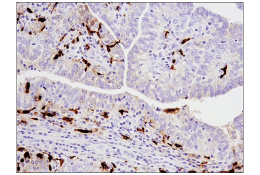 Immunohistochemical analysis of paraffin-embedded human infiltrating papillary carcinoma of the breast using S100A9 (D5O6O) Rabbit mAb (IHC Formulated).