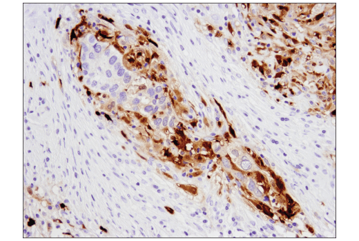 Immunohistochemical analysis of paraffin-embedded human endometrioid adenocarcinoma using S100A9 (D5O6O) Rabbit mAb (IHC Formulated).