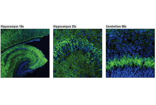 Confocal immunofluorescent analysis of P5 mouse hippocampus (left, low magnification; middle, high magnification) and cerebellum (right, high magnification) using PKCγ (D2V6T) Rabbit mAb (green). Blue pseudocolor = DRAQ5<sup>®</sup> #4084 (fluorescent DNA dye).