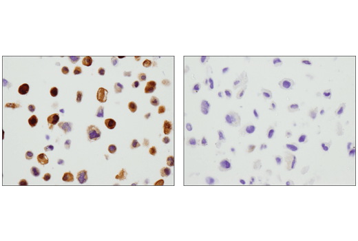 Immunohistochemical analysis of paraffin-embedded HeLa cell pellet (left, positive) or U-138 MG cell pellet (right, negative) using GLUL (D2O3F) Rabbit mAb (IHC Formulated).