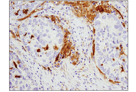 Immunohistochemical analysis of paraffin-embedded human endometrioid adenocarcinoma using GLUL (D2O3F) Rabbit mAb (IHC Formulated).