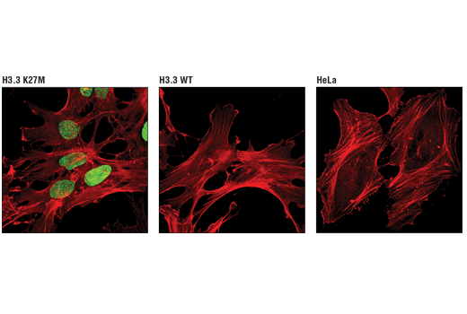Confocal immunofluorescent analysis of mouse astrocytes, containing either a knock-in FLAG-tagged K27M mutant histone H3.3 gene (left, positive) or a knock-in FLAG-tagged wild-type histone H3.3 gene (center, negative), and HeLa cells (right, negative), using Histone H3 (K27M Mutant Specific) (D3B5T) Rabbit mAb (green) and β-Actin (8H10D10) Mouse mAb #3700 (red).
