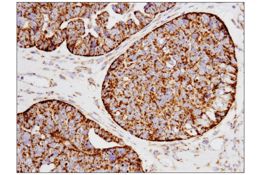Immunohistochemical analysis of paraffin-embedded human serous papillary carcinoma of the ovary using SLP-2 (D2I9X) XP<sup>®</sup> Rabbit mAb.