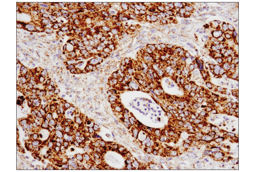 Immunohistochemical analysis of paraffin-embedded human colon carcinoma using SLP-2 (D2I9X) XP<sup>®</sup> Rabbit mAb.