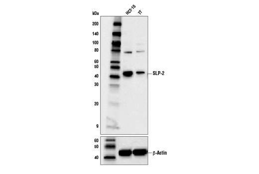 Western blot analysis of extracts from the indicated cells using SLP-2 (D2I9X) XP<sup>®</sup> Rabbit mAb (upper) and β-Actin (D6A8) Rabbit mAb #8457 (lower).