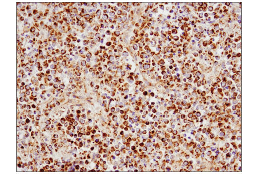Immunohistochemical analysis of paraffin-embedded human non-Hodgkin's lymphoma using SLP-2 (D2I9X) XP<sup>®</sup> Rabbit mAb.
