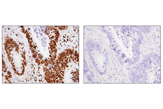 Immunohistochemical analysis of paraffin-embedded human colon carcinoma using Acetyl-Histone H2B (Lys20) (D7O9W) Rabbit mAb in the presence of Histone H2B-specific (non-acetylated) peptide (left) or acetyl-Histone H2B (Lys20)-specific peptide (right).